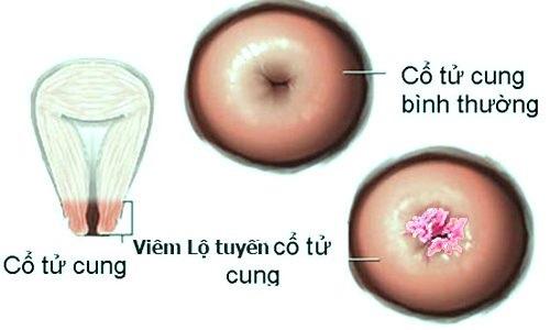 hình ảnh viêm lộ tuyến cở tử cung